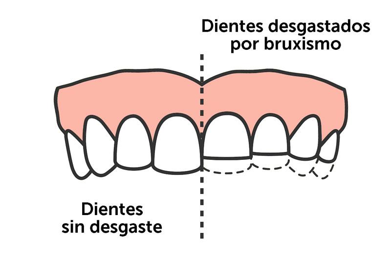 Bruxismo: qué es y como tratarlo | ODOS Dental